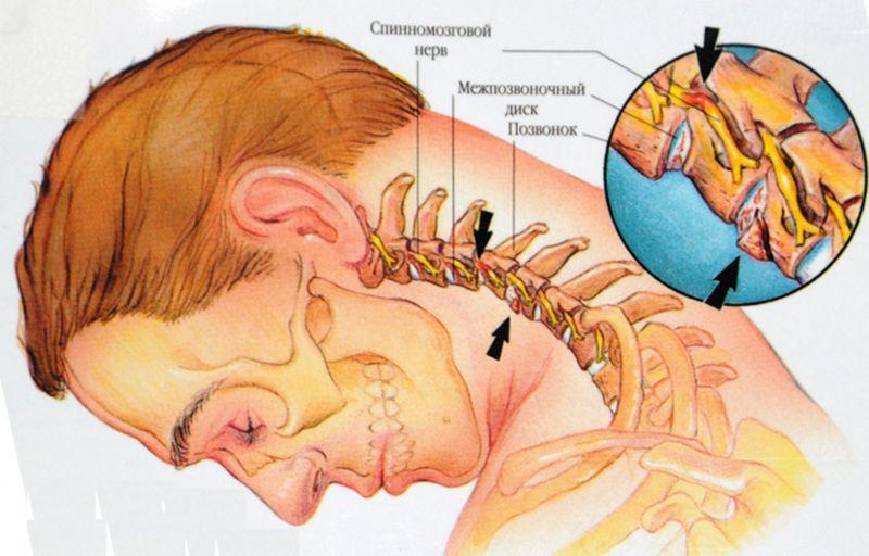 хондроз шейного отдела позвоночника