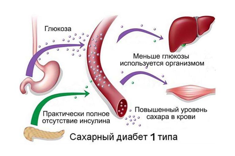 Диабет нот при диабете 1 типа