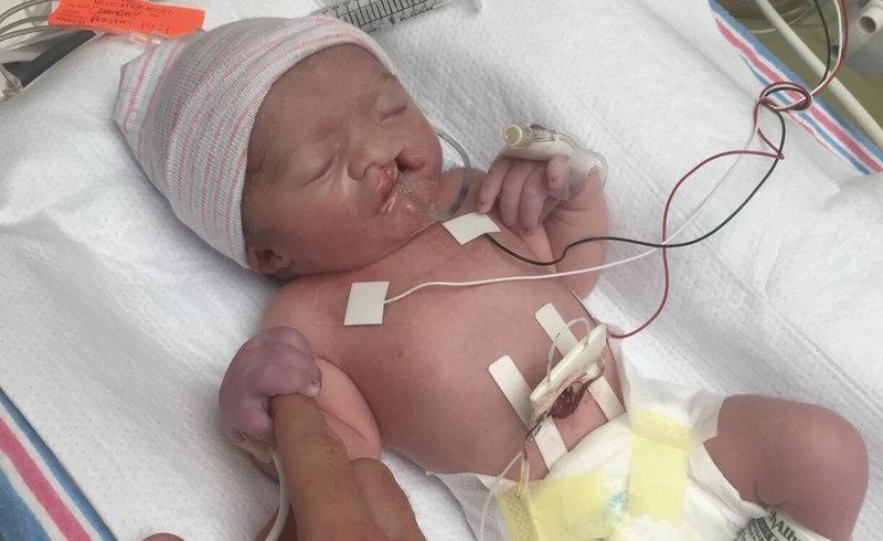 Новорождённый с волчьей губой