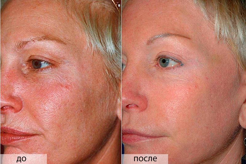 Применение димексида для кожи