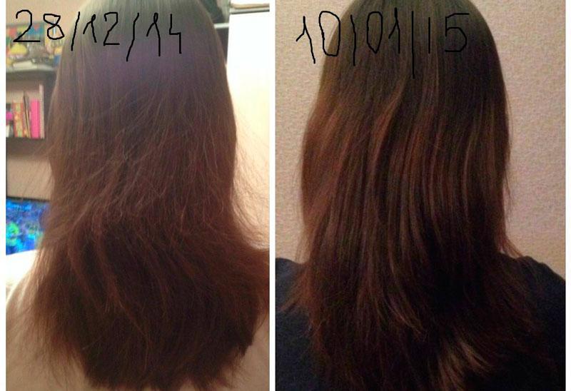 Волосы после применения димексида