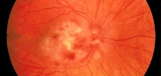 Глазное дно – что показывает?