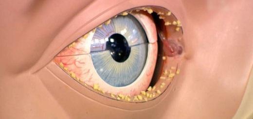 Чем лечить гной в глазах у ребёнка