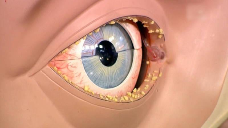 Гноятся глаза у ребенка - что делать и чем лечить выделения в домашних условиях?