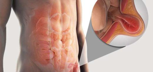 Операция по удалению паховой грыжи у мужчин, женщин и детей