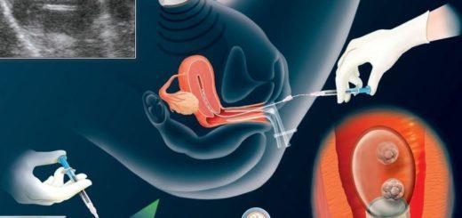 Когда происходит имплантация эмбриона?