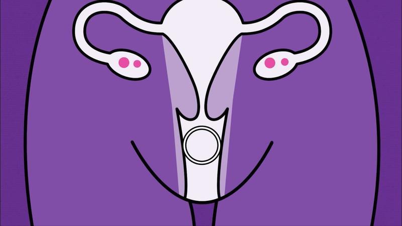 Установка контрацептива