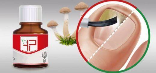 Капли от грибка ногтей – эффективные средства для борьбы с онихомикозом