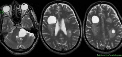 Киста головного мозга — что это?