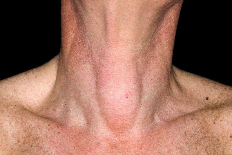 Киста в щитовидной железе