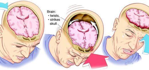Контузия мозга