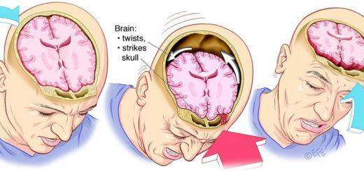 Контузия головного мозга