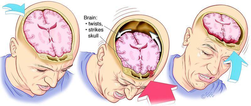 Что такое контузия головного мозга: причины, лечение и последствия. Контузия головного мозга последствия от взрыва