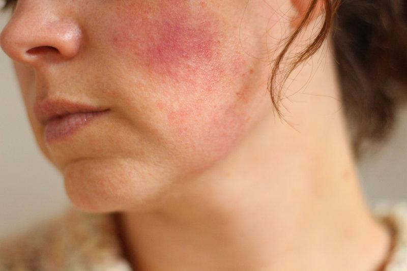 Красные шелушащиеся пятна на лице