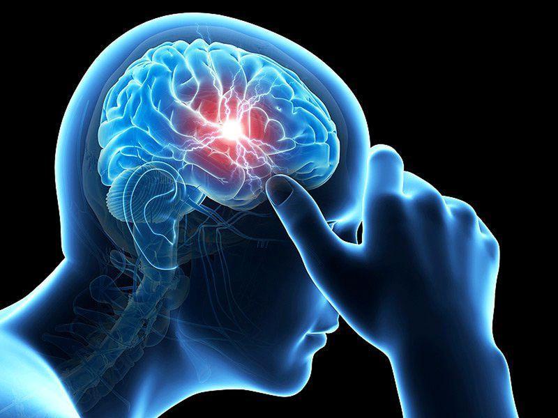 Лёгкое сотрясение мозга