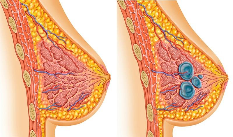 Мастопатия молочных желез