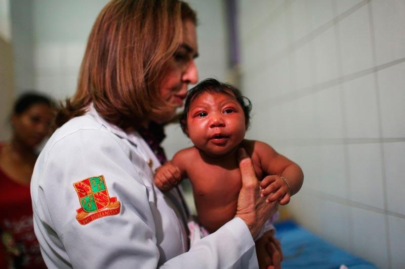 Ребёнок микроцефал на руках у девушки