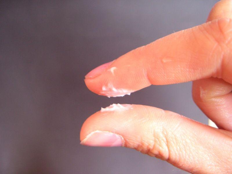 выделения при молочнице