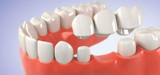 Мост на зубы – что это такое?