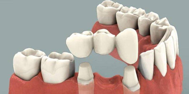 Мост на зубах