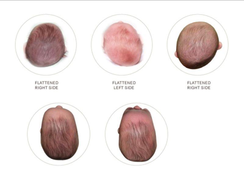 У новорожденного вытянутая голова почему
