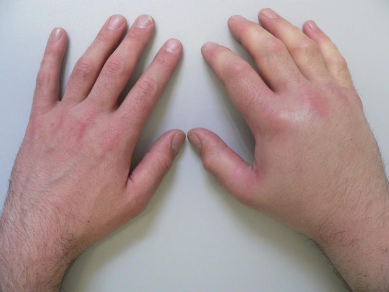 Опухшая рука после сна
