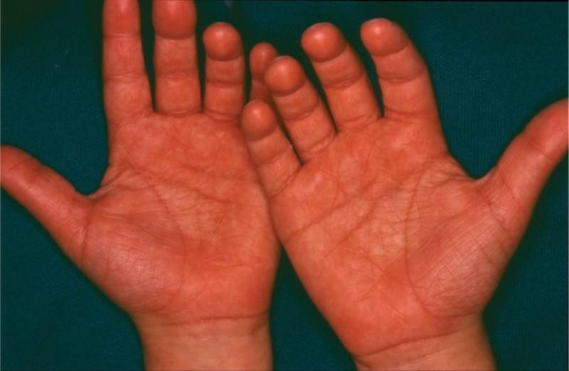 Отёчность пальцев рук