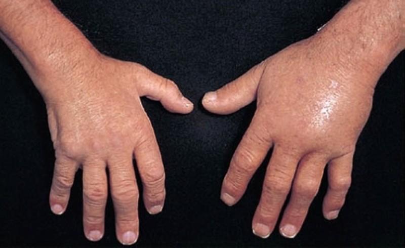 Опухание кистей рук