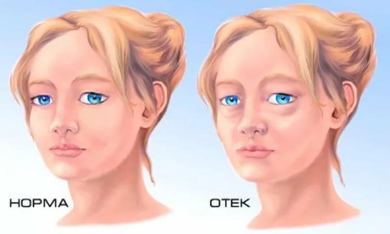 Отёки лица