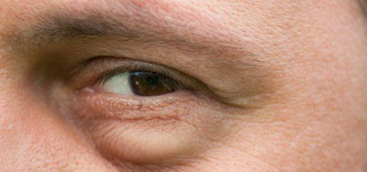 Как быстро убрать отеки под глазами?