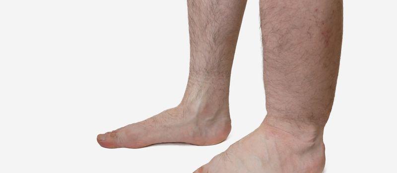 Отёк левой ноги
