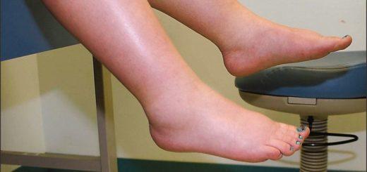 Почему отекают ноги – что делать?