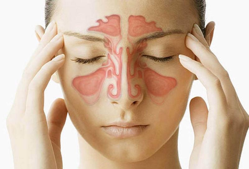 отек слизистой носа