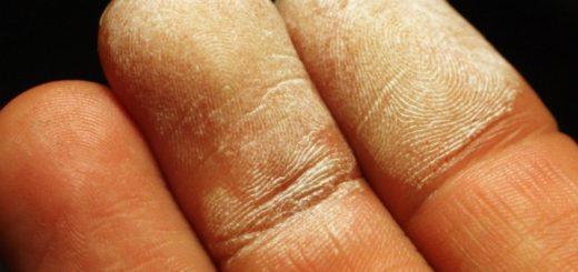 Что делать если обжог палец?