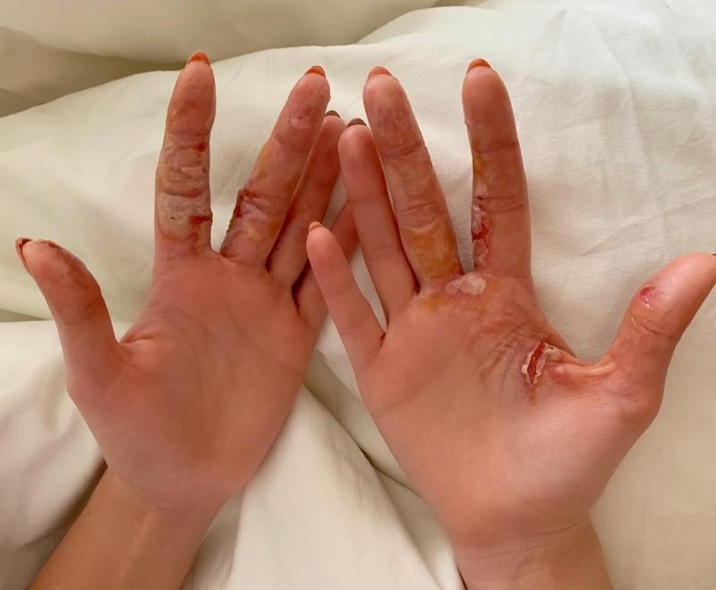 Ожог пальца