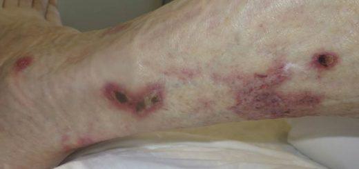 Пиодермия – что это такое?