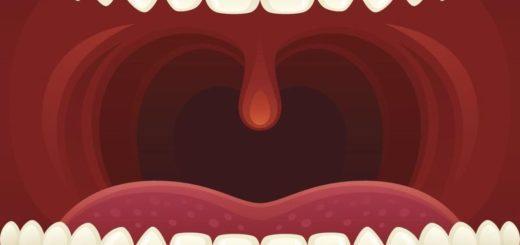 Чем лечить красное горло?