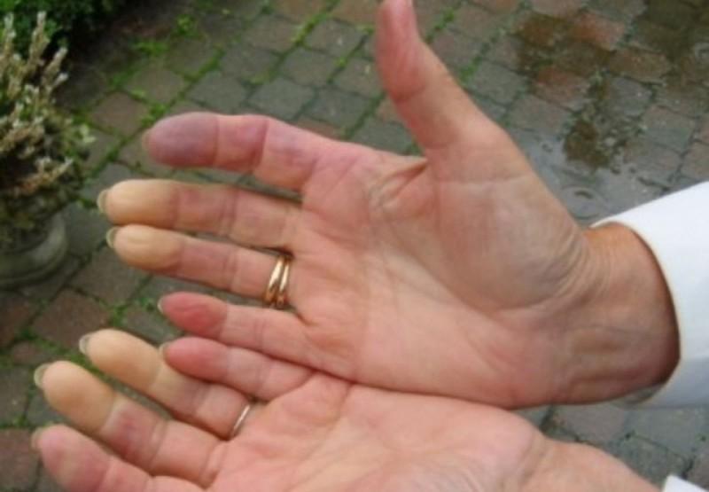 Посиневшие руки