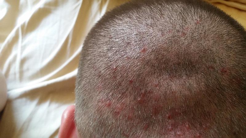 Сыпь на коже головы