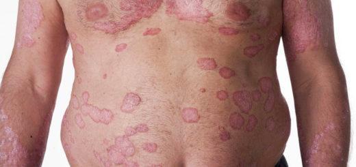 Как выглядит псориаз – лечение чешуйчатого лишая