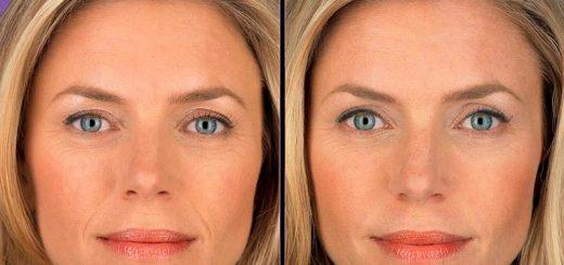 Димексид в косметологии – эффективность и способы применения