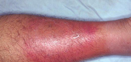 Рожистое воспаление ноги – что это такое?
