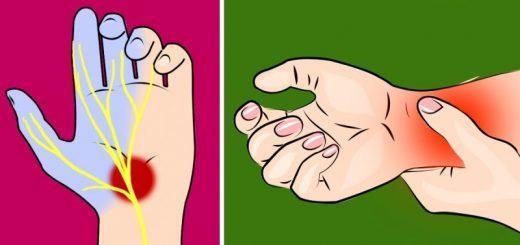 Почему отекают руки – что делать?