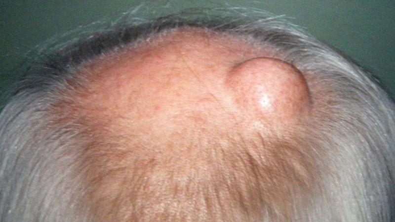 Как вылечить шишку на голове