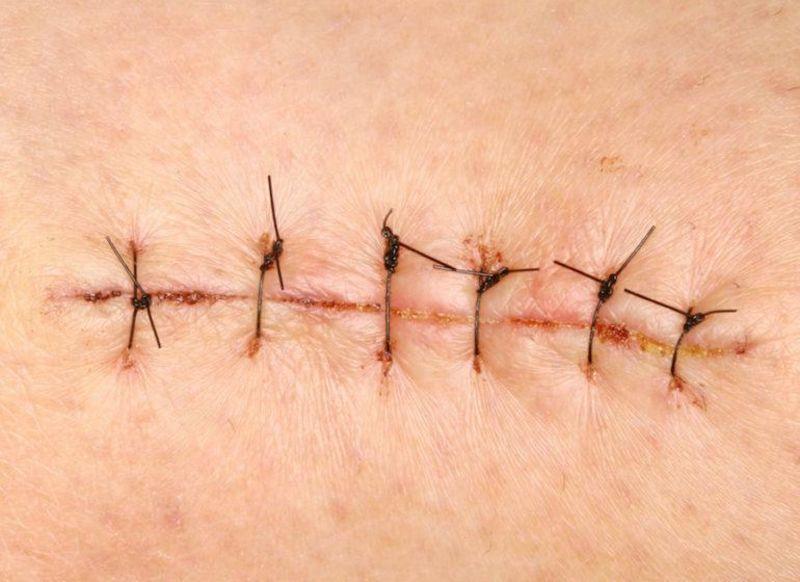 Чем смазывают швы после операции
