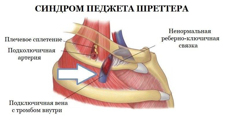 Синдром Педжета-Шреттера