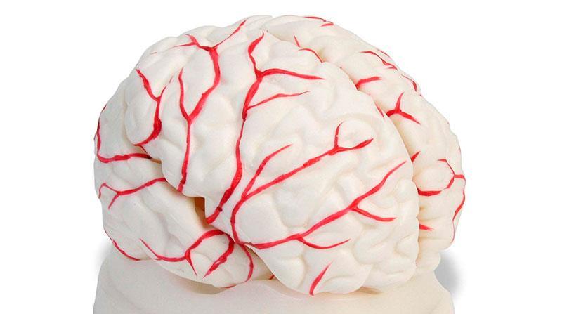 Как почистить сосуды головного мозга и снять спазмы: лекарства, народные средства