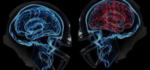 Лёгкое сотрясение мозга – что делать?