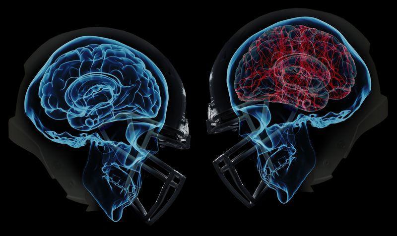 Через сколько проявляется сотрясение мозга