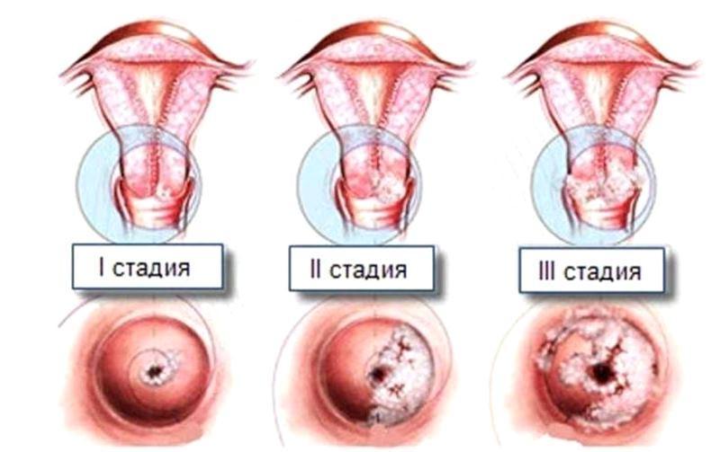 3 стадии дисплазии шейки матки